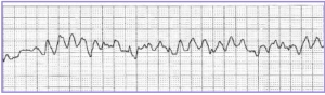 Heartbeat under cardiac arrest